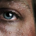 Simpatectomia: Imagem aumentada da região superior da face de uma mulher que está suando